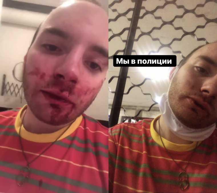 В Екатеринбурге избили представителей ЛГБТ. «Несколько раз терял сознание». ФОТО